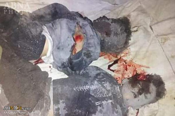حمله جنگنده های سعودی و شهادت خانواده ای با 8 عضو + تصاویر 18+