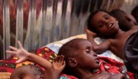 دو ملین یمنی بچے غذائی قلت کا شکار، اقوام متحدہ کا اظہار تشویش