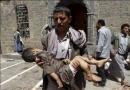 (18+) تصاویر جنایات حکومت کودک کش علیه کودکان یمنی